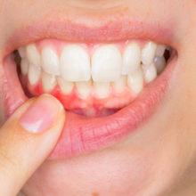 Пародонтит, гингивит, стоматит— профилактика и лечение