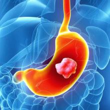 Полипы желудка— симптомы, последствия, народные средства лечения