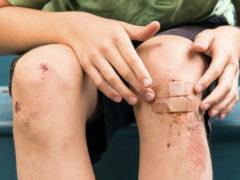 Лечим незаживающие раны