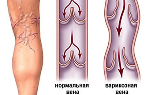 Лечение варикоза в домашних условиях народными средствами
