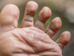 Лечение грибка народными средствами