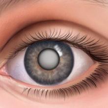 У вас катаракта? Народные средства для лечения катаракты