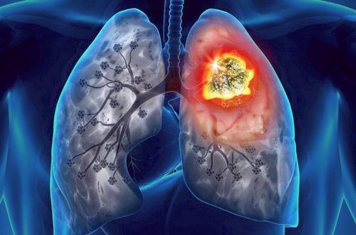 Рак легкого лечение народными средствами