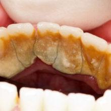 Народные средства для профилактики камней на зубах