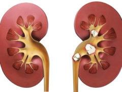 Камни в мочевом пузыре и в почках— народное лечение