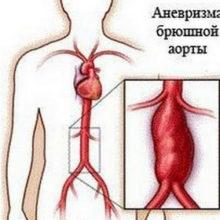 Лечение Аневризмы Аорты народными средствами