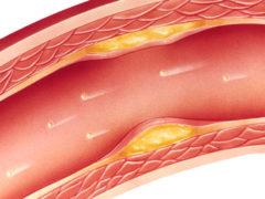 Атеросклероз — симптомы и народные рецепты в помощь