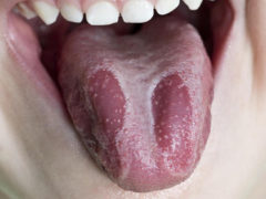 Глоссит языка— лечение народными средствами