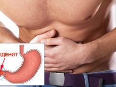 Дуоденит— симптомы и лечение народными средствами